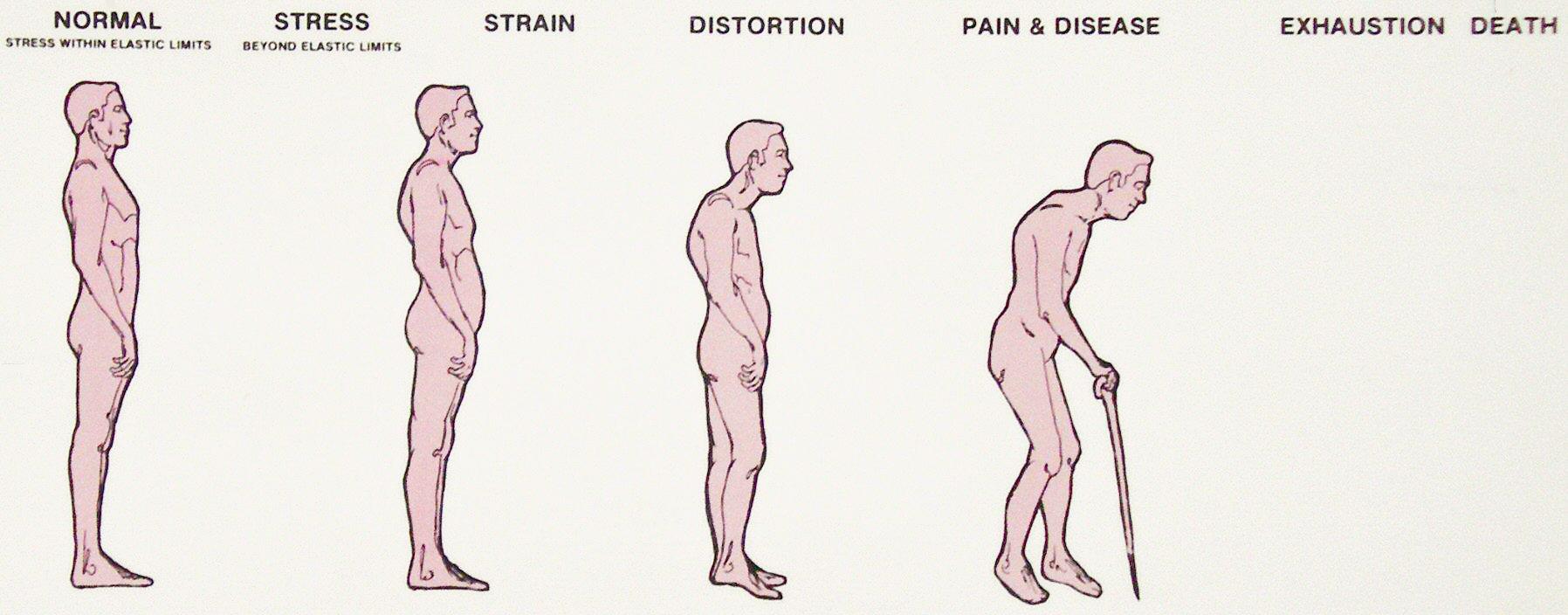 10 manieren om ruggengraat te corrigeren    o.a. rugpijn verminderen